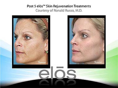 Medi Spa Laser Rejuvenation Treatments by Atlantis Day Spa