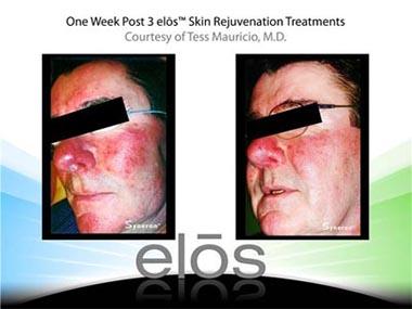 Medi Spa Laser Rejuvenation Treatments by Atlantis Day Spa