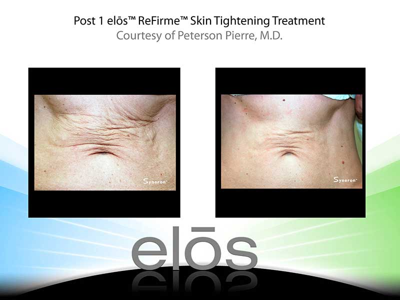 Medi-Spa Sublime Skin Tightening Treatment
