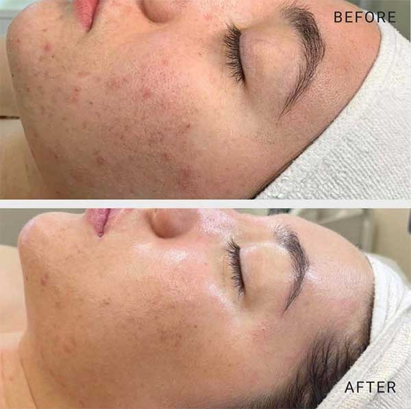 Chemical Peel Treatments - Book Today!