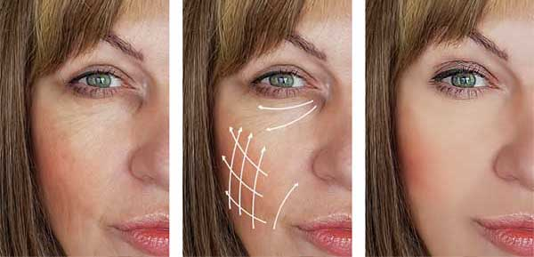 Try our new Lifting Facial - Book Today!